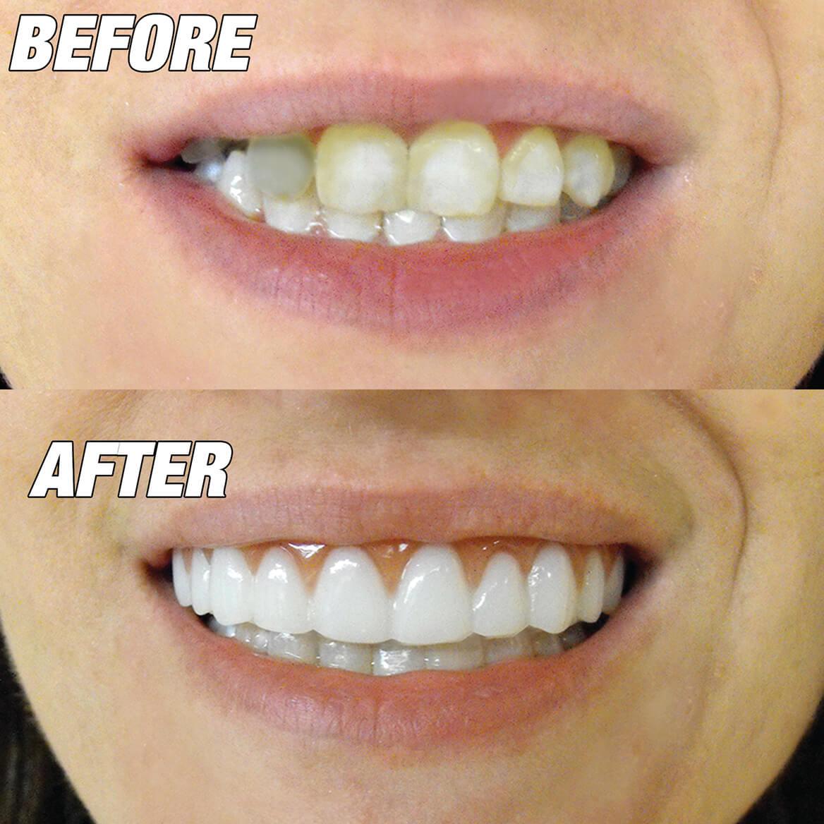Instant Smile™ Comfort Fit Flex Upper Veneer Bright White-366589