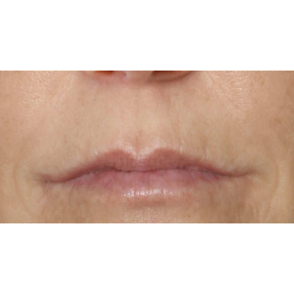 DermeCeuticals Upper Lip Line Define-369215