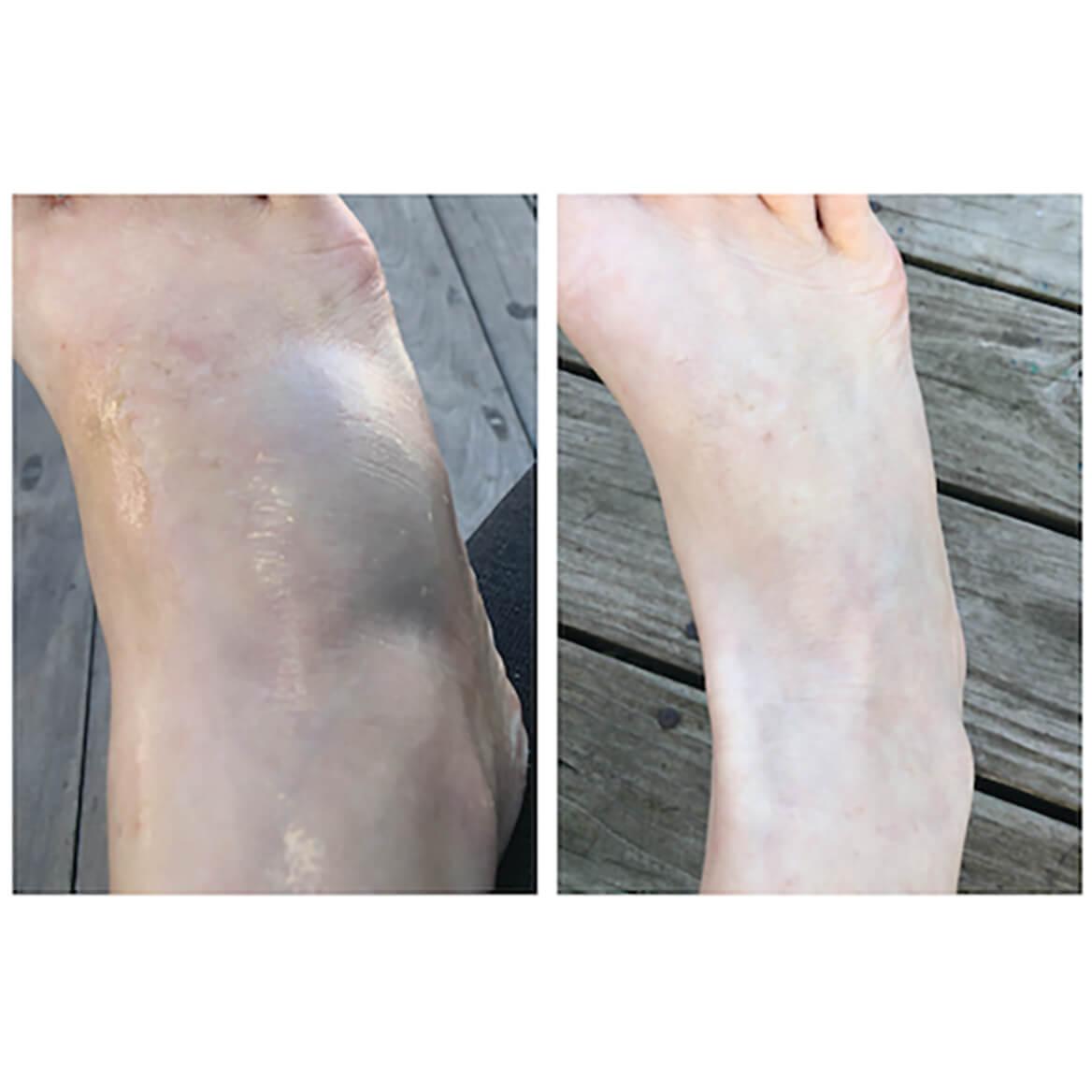 Anshi™ Total Healing Turmeric Transdermal Rub 4oz-369648