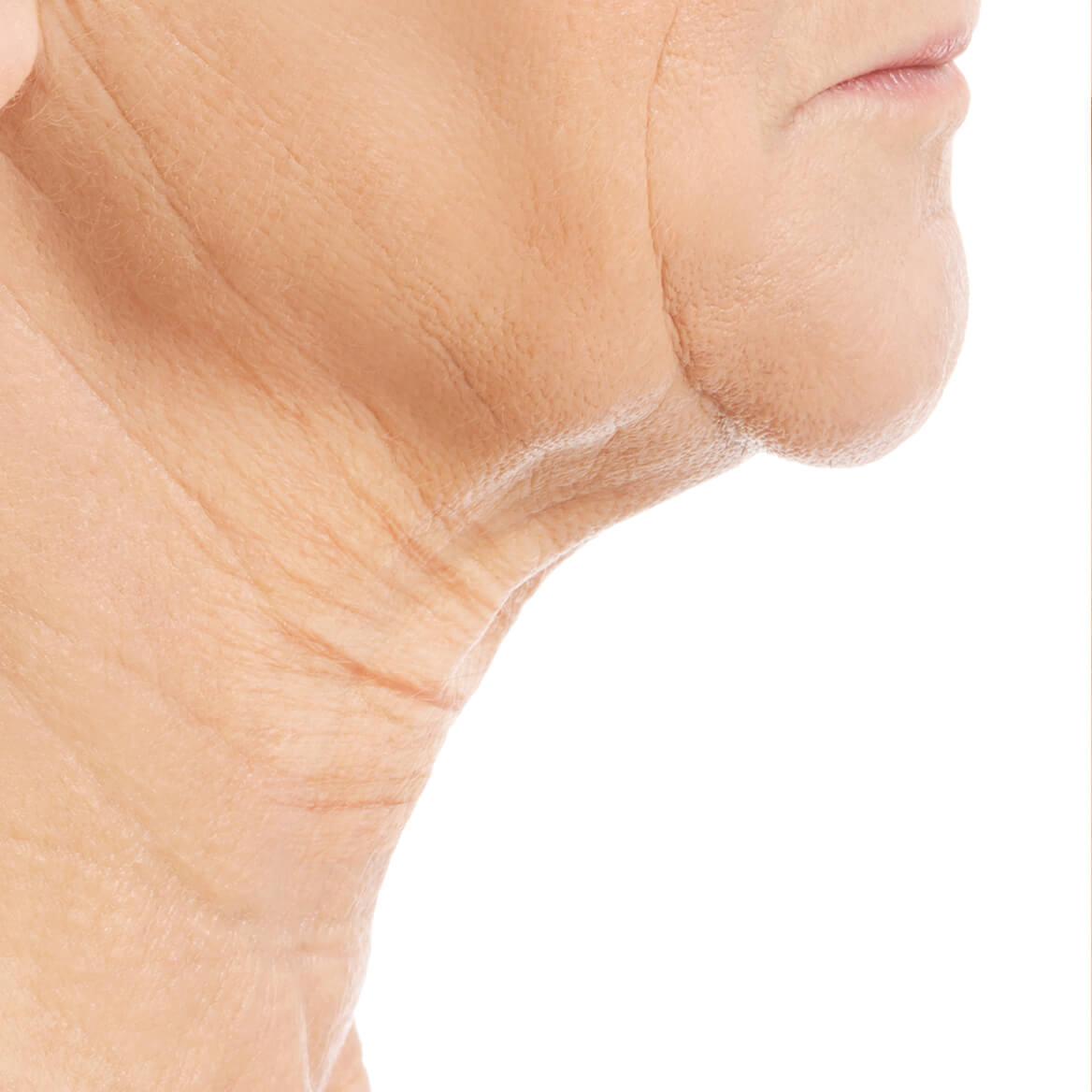 Crepe Be Gone Skin Firming Collagen Chin Masks Set of 2-370686