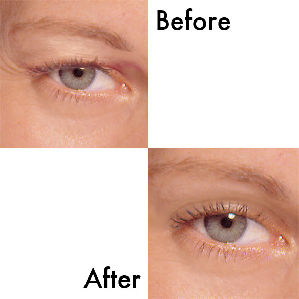 Sudden Change™ Eyelid Lifter Creme - View 1