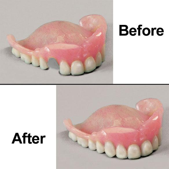 Denture repair kit denture repair adhesive easy comforts