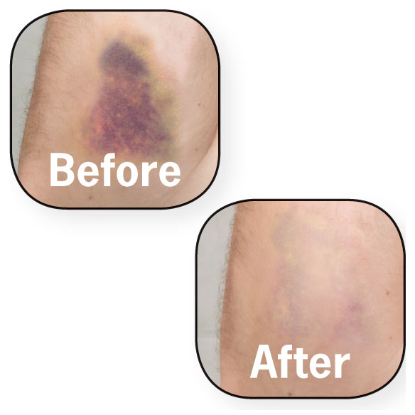 Healthful™ Bruise Cream - View 1