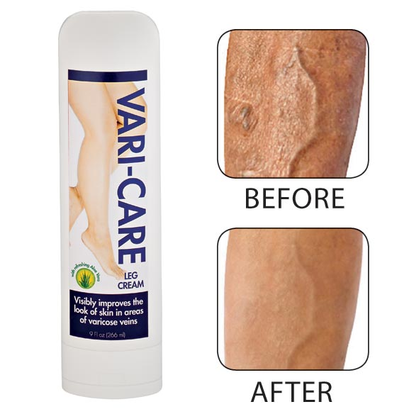 Vari-Care Leg Cream - View 1