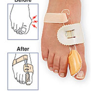 Foot Care - Bunion Splint